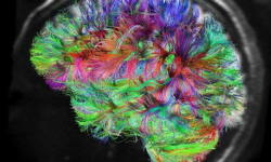 Are Creative Brains Different?